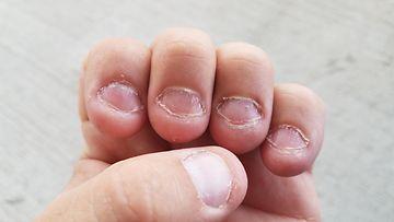 pureskella kynsiä