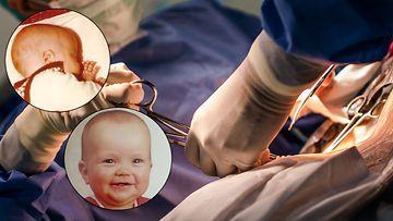 vauvan sektioarvet pääkuva