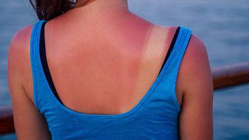 auringossa palanut iho