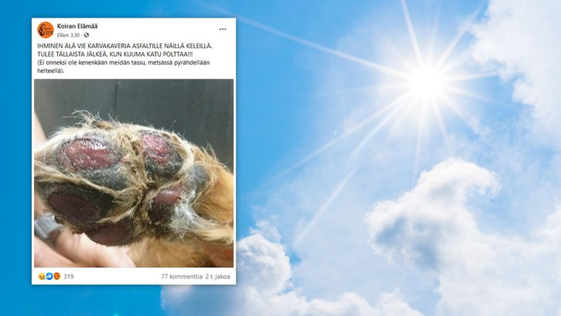 OMA: Aurinko, tassu, palovamma