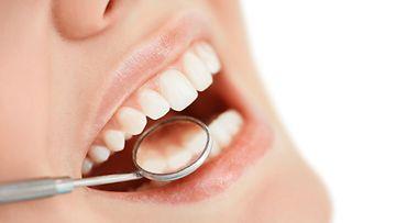 hammastarkastus