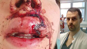 Sähköpotkulaudalla onnettomuuteen joutunut potilas antoi luvan käyttää kuvaansa artikkelissa. Oikeassa kuvassa Aaro Turunen.