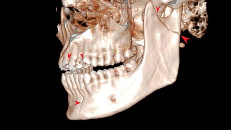 Sähköpotkulaudalla onnettomuuteen joutunut potilas antoi luvan käyttää kuvaansa artikkelissa. Tähän kuvaan on merkittyonnettomuuden aiheuttamat murtumakohdat ja hammasvammakohdat. Kontrastia on myös hieman lisätty näkyvyyden parantamiseksi.