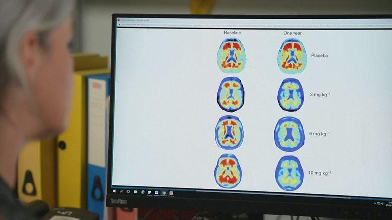 Alzheimer-lääke, aivotutkimus
