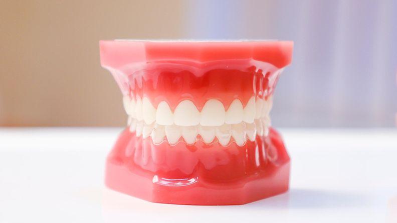 hammasmalli