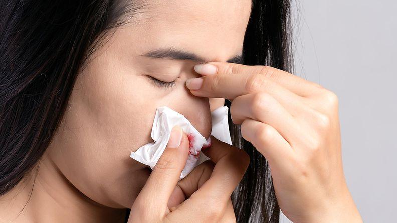 nenäverenvuoto