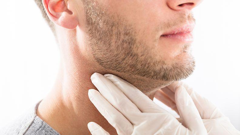 kilpirauhassyövän oireet, patti kurkussa