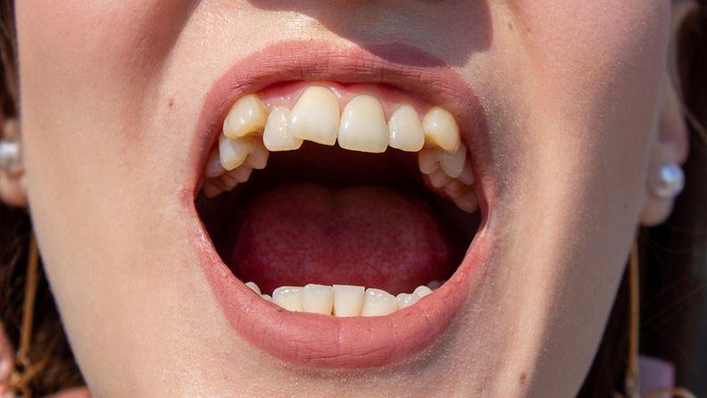 Vinot hampaat