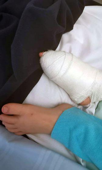 Pojan jalka leikkauksen jälkeen. Kuva Karri ja Riina