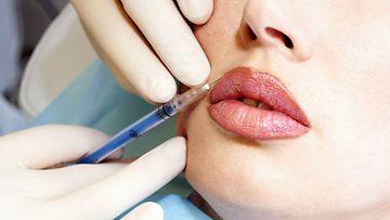 Annette Edwards on käyttänyt kauneuskirurgiaan yli 20 000 euroa.