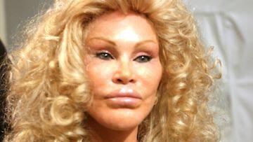 Jocelyn Wildenstein on tehnyt kauneusleikkauksia miljoonilla dollareilla.