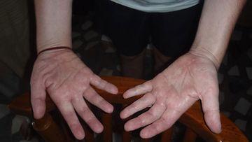 Yrttihoidot saivat Jarin sormet suoristumaan.